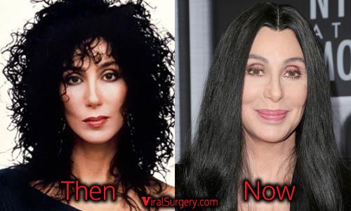 Cher Plastic Surgery