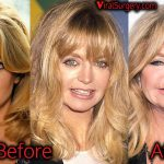 Goldie Hawn Plastic Surgery, Before and After Facelift, Fillers Photos