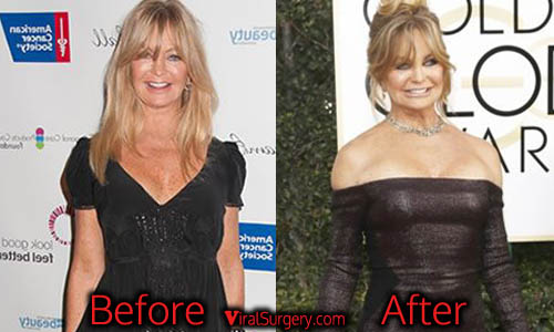 Goldie Hawn Plastic Surgery, Boob Job