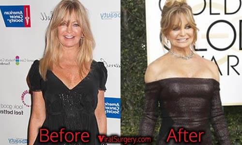 Goldie Hawn Plastic Surgery, Boob Job