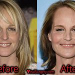 Helen Hunt Plastic Surgery, Before and After Facelift Pictures