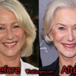 Helen Mirren Plastic Surgery: Has She Had Facelift? Before-After Pics