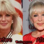 Linda Evans Plastic Surgery, Before and After Facelift Pictures