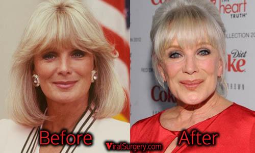 Linda Evans Plastic Surgery