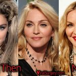 Madonna Plastic Surgery, Before and After Facelift, Eyelift Pictures