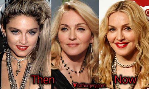 Madonna Plastic Surgery Picture