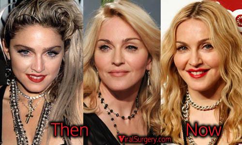 Madonna Plastic Surgery Picture