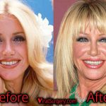 Suzanne Somers Plastic Surgery, Before and After Facelift Pictures