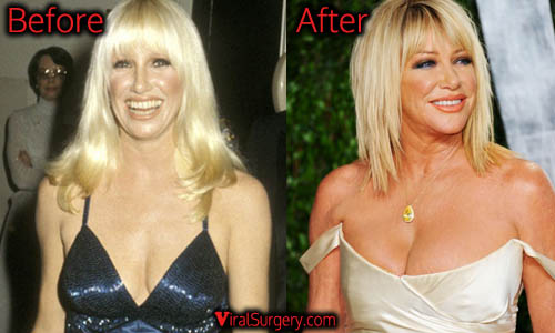 Suzanne Somers Plastic Surgery, Boob Job