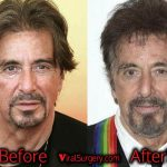 Al Pacino Plastic Surgery, Before After Facelift Rumor