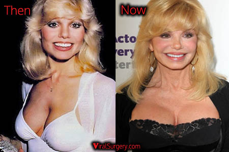 Loni Anderson Breast Implants