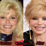 Loni Anderson Plastic Surgery, Before After Boob & Nose Job