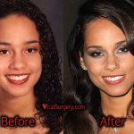 Alicia Keys Plastic Surgery: Nose Job Before and After Photos
