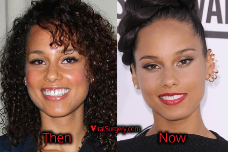 Alicia Keys Plastic Surgery
