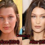 Bella Hadid Plastic Surgery: Before After Nose Job Pictures