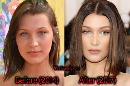 Bella Hadid Plastic Surgery