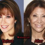 Cheri Oteri Plastic Surgery, Before and After Facelift Photos