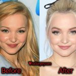 Dove Cameron Plastic Surgery Nose Job, Before and After Pics