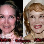 Kathryn Crosby Plastic Surgery: Before After Facelift Photos