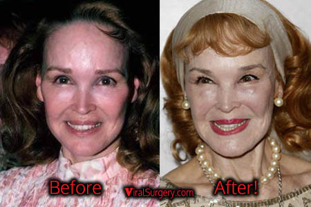 Kathryn Crosby Plastic Surgery