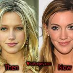 Katie Cassidy Plastic Surgery: Before After Nose Job Pics