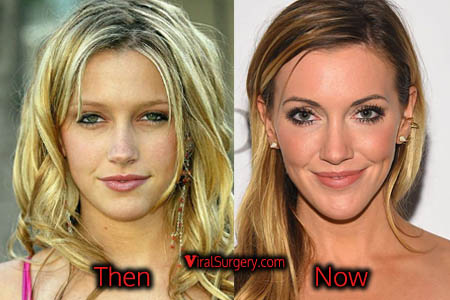 Katie Cassidy Nose Job