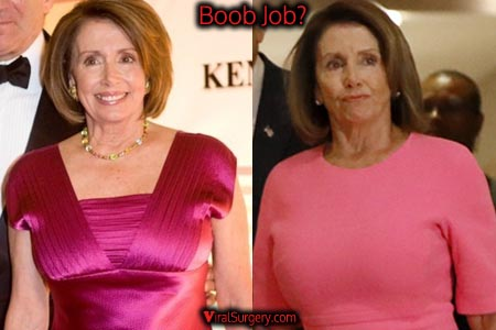 Nancy Pelosi Boob Job