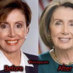 Nancy Pelosi Plastic Surgery: Facelift, Boob Job, Before and After
