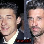 Patrick Dempsey Plastic Surgery Nose Job, Before and After
