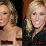 Paula White Plastic Surgery, Before and After Facelift Pictures