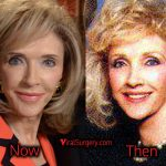 Rexella Van Impe Plastic Surgery: Facelift, Before and After Pics