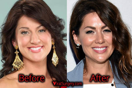 Jillian Harris Plastic Surgery