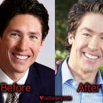 Joel Osteen Plastic Surgery, Before and After Botox Picture