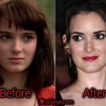 Winona Ryder Plastic Surgery, Before and After Nose Job Pictures